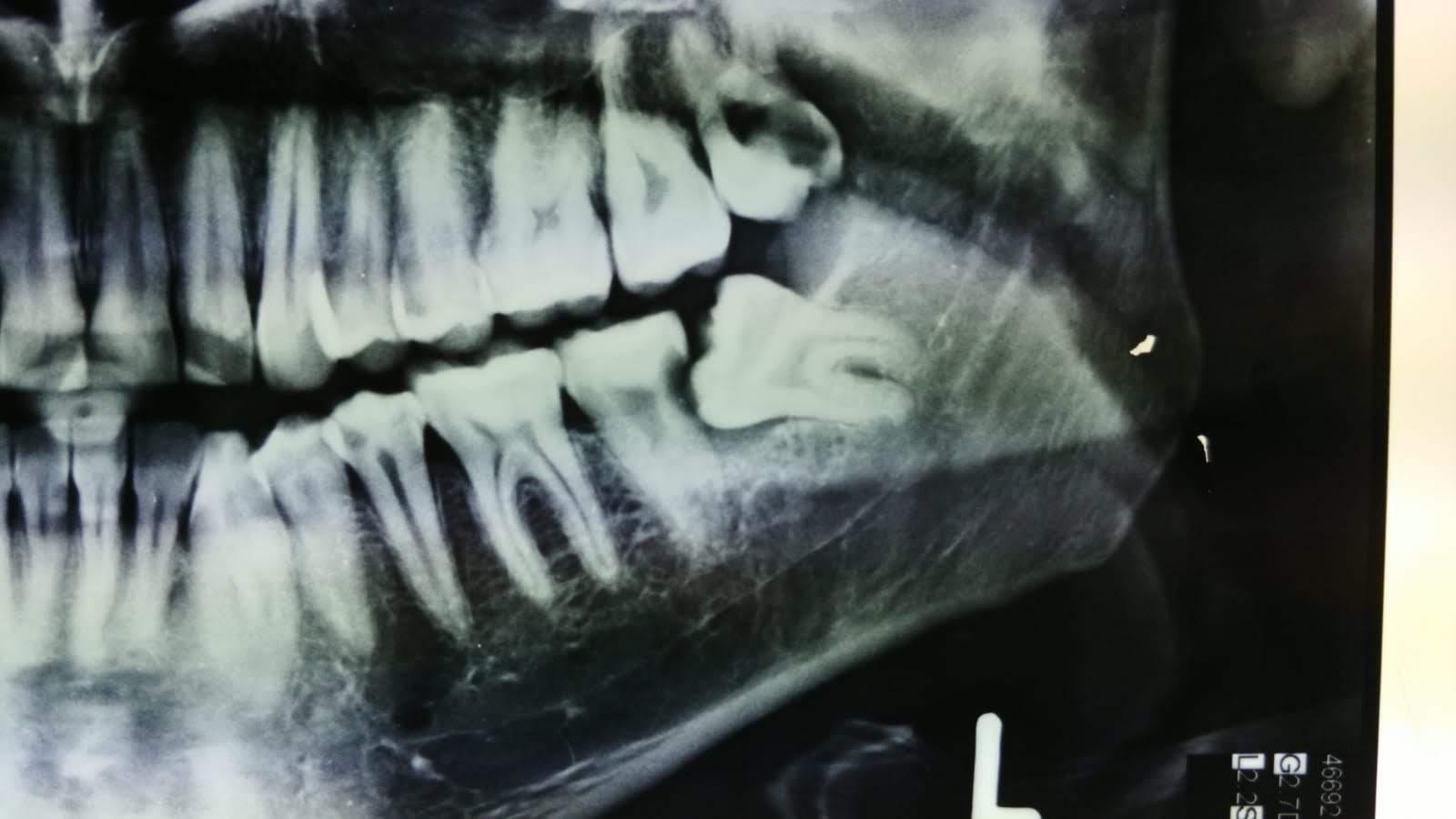 radiografia iniziale