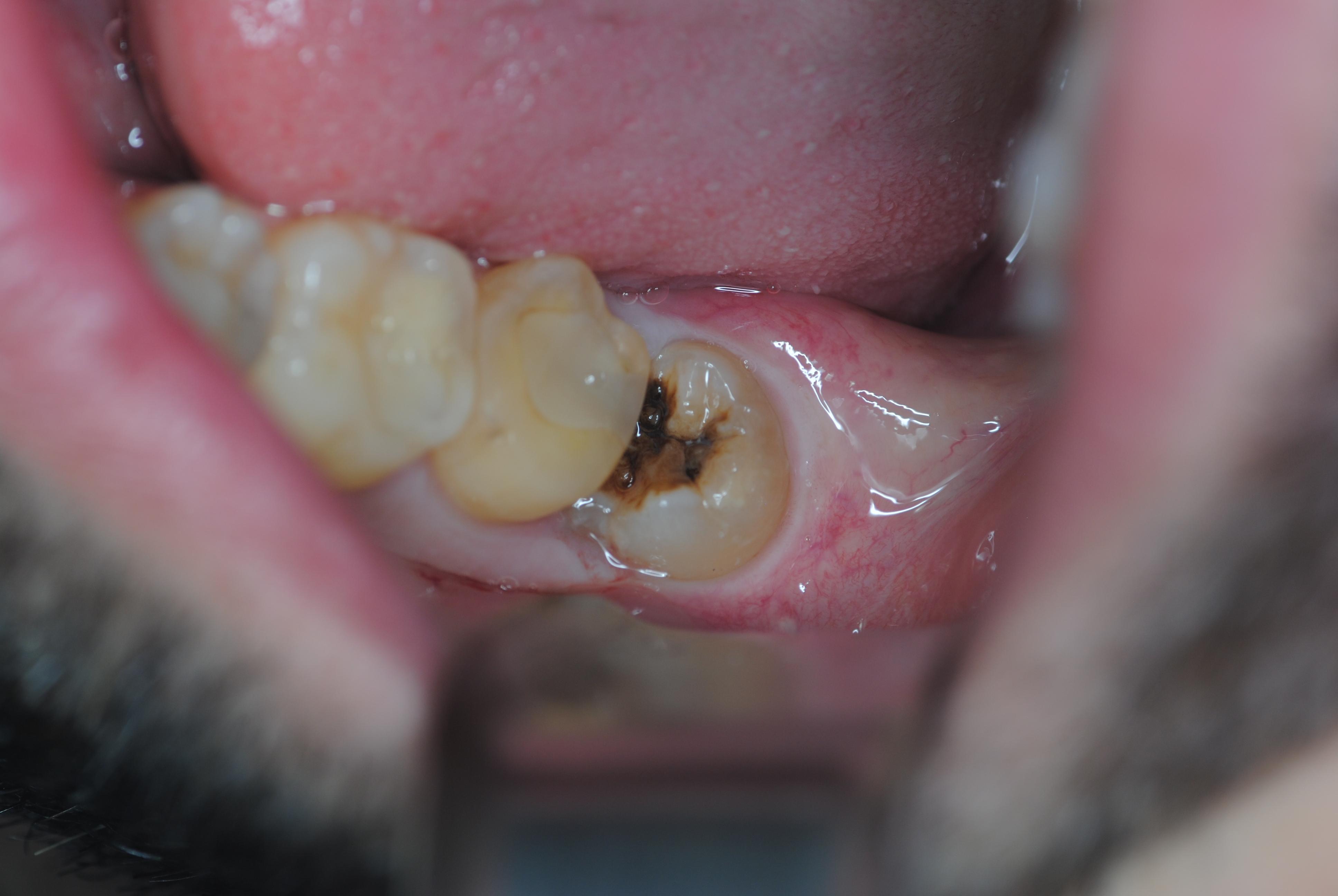 visone occlusale del dente